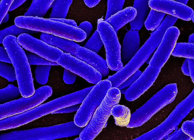 Coloured scanning electron micrograph of Escherichia coli, grown in culture (CC BY 2.0)